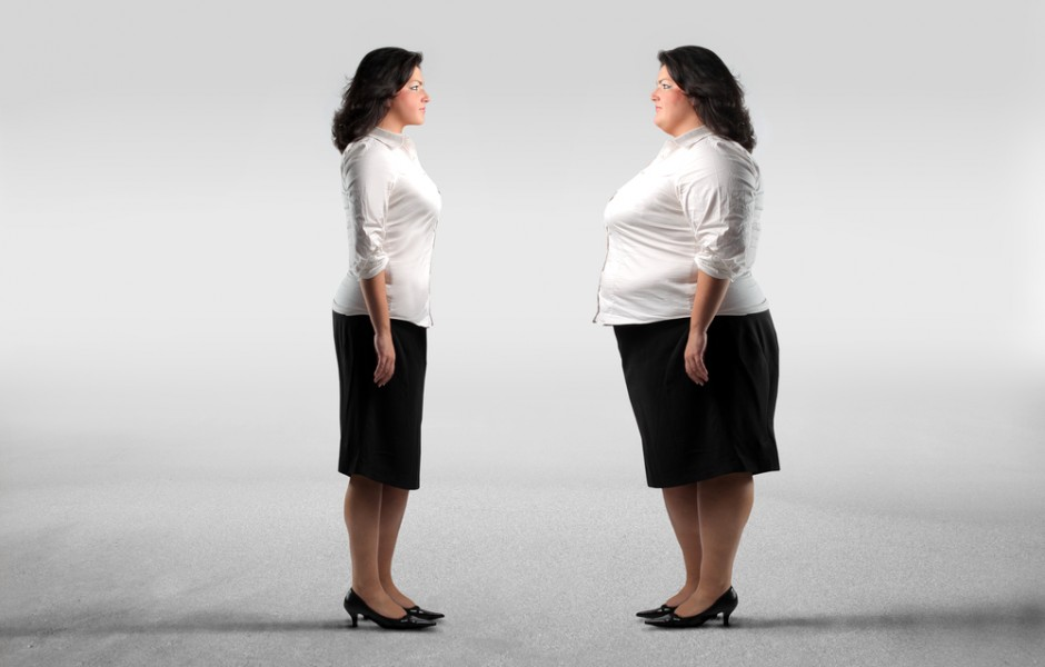 Benefits of Surgery for Weight Loss